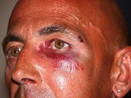 Battered Man
