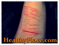 Self harm pictures and why people want to look at self mutilation pictures and self injury photos. Read why self harm images trigger people to inflict self harm.