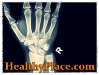 Self people self injure by purposefully shoving needles or other sharp objects under their skin. Here's a hand x-ray with an embedded object near the wrist