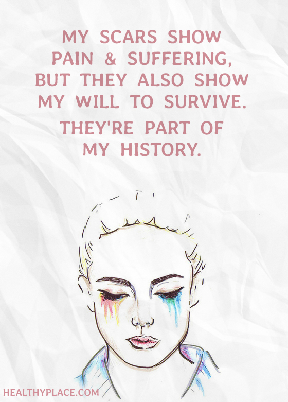 Mental illness quote - My scars show pain & suffering, but they also show my will to survive. They're part of my history.